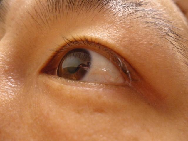 目 充血 治し方