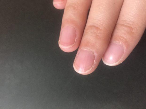 指 ささくれ 腫れて 痛い