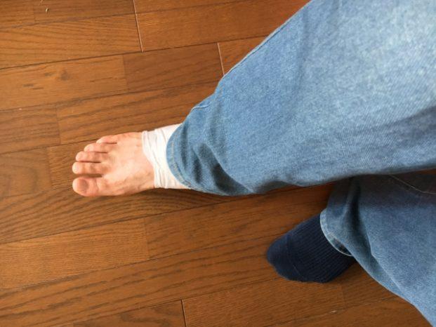 足首 捻挫 腫れ