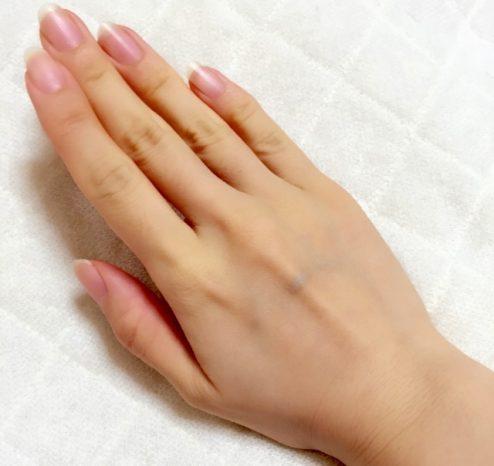 手の血管 浮き出る 原因