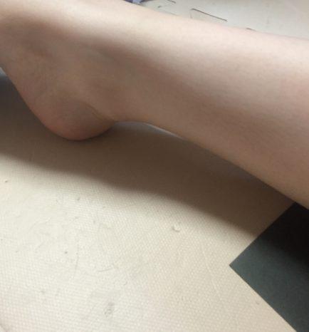 アキレス腱 腫れ