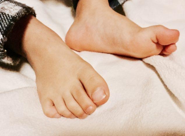 足の小指 割れ 変形 原因