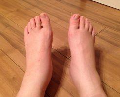 アキレス腱 痛み