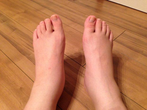 立ちっぱなし 足 痛い